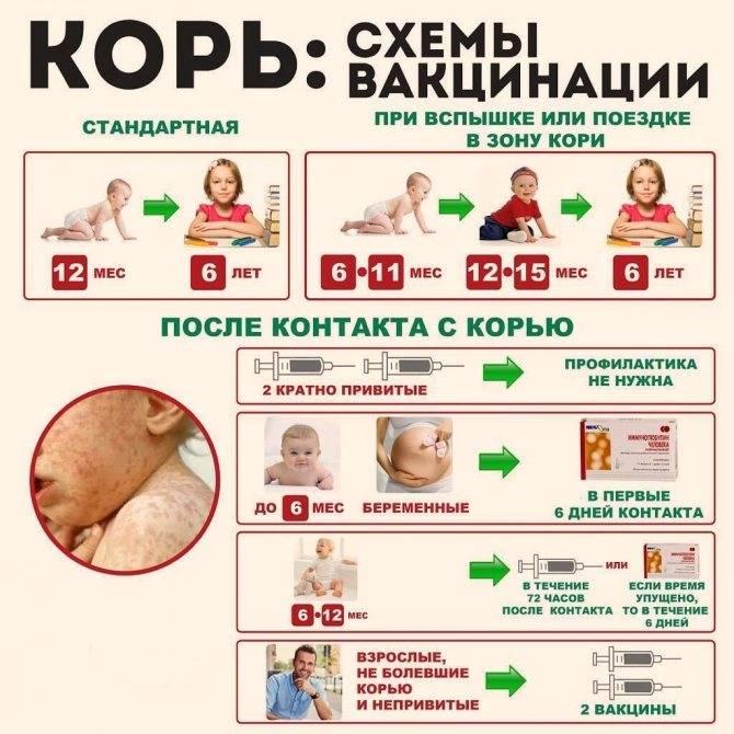 Как проявляется корь у детей: симптомы и признаки, лечение, профилактика