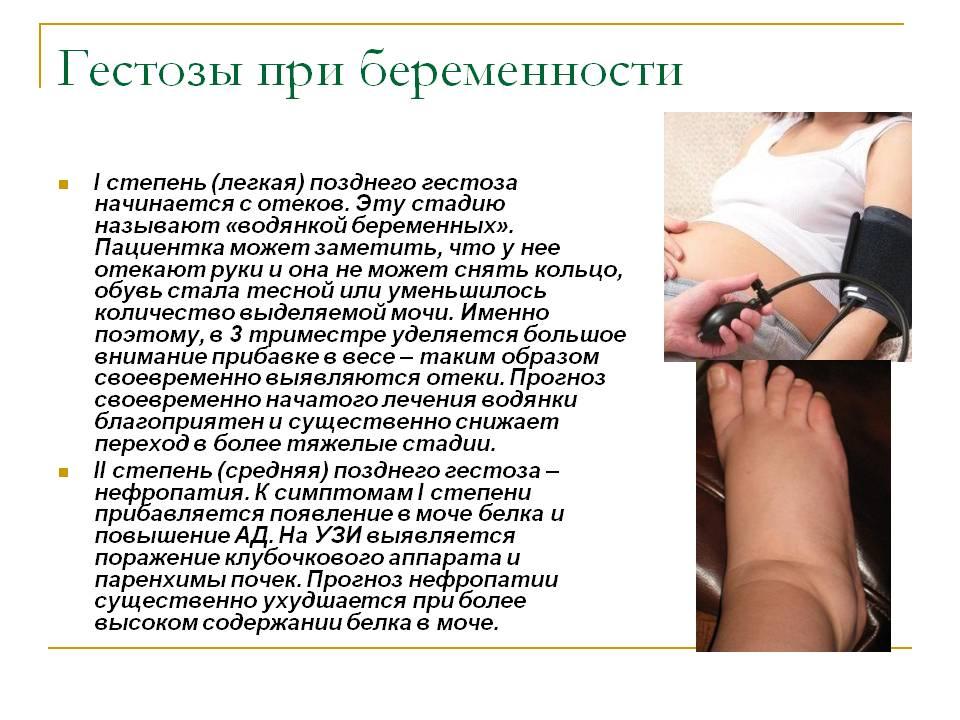Гестоз при беременности - что это такое, признаки, лечение, профилактика и последствия