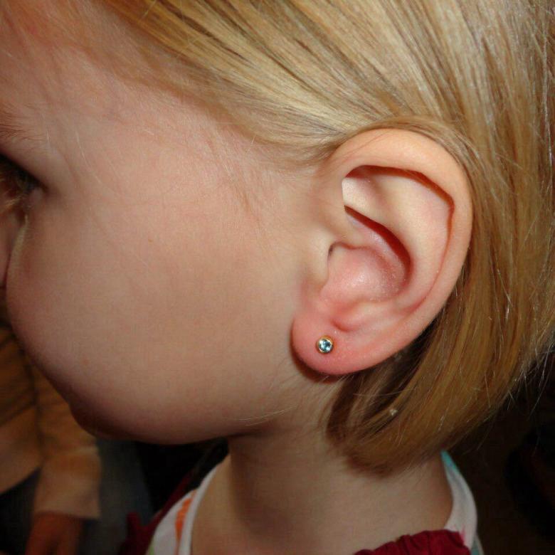Что делать, если долго заживают уши после прокола?
