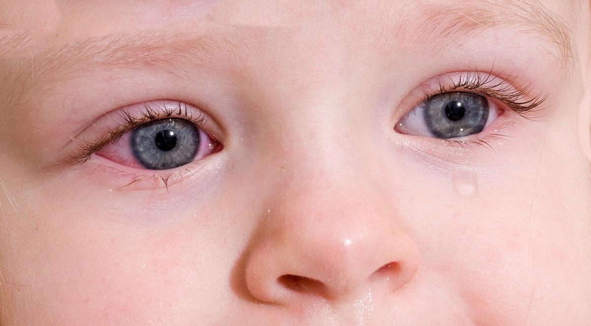 Конъюнктивит у ребенка: лечение, причины, симптомы, виды, как выглядит (фото), сколько длиться