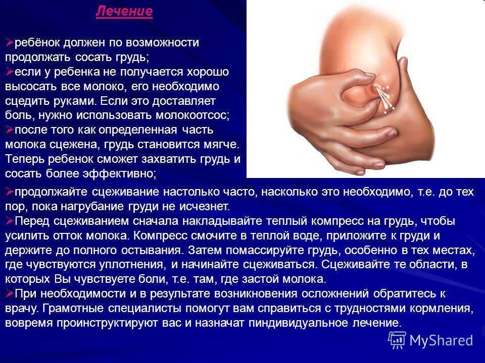Как лечить лактостаз у кормящей матери в домашних условиях