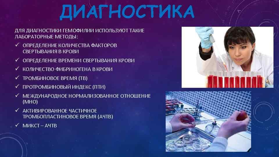 Симптомы и лечение гемофилии (царской болезни)