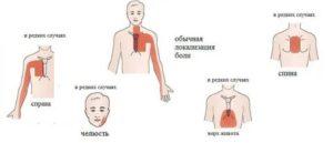 Что нужно делать, если появились боли в сердце у подростка? алгоритм медицинской помощи