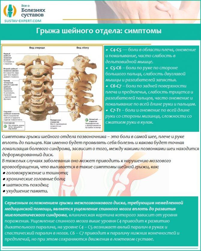 Как лечить остеохондроз при беременности