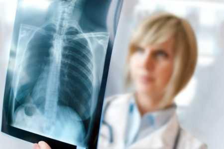 Рентген при беременности: влияние рентгена на течение беременности, как часто можно его делать, возможные последствия