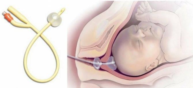 Катетер при беременности для открытия матки - все о беременности