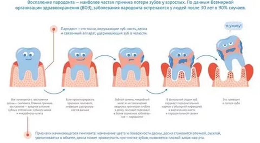 Как влияет грудное кормление на развитие кариеса зубов у детей. советы стоматологов.