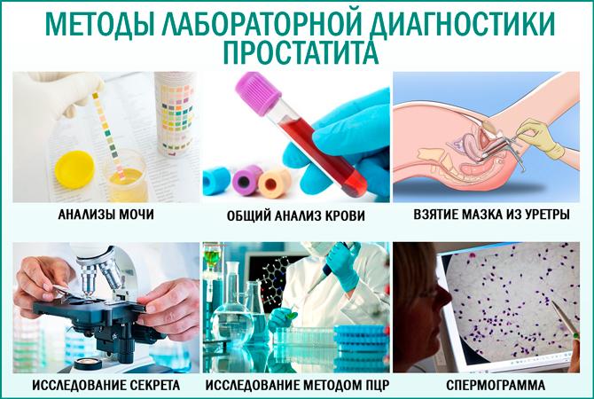 Патология головки сперматозоида - лечение, норма в спермограмме