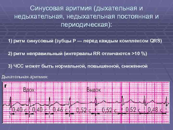 Дыхательная аритмия у детей на экг — сердце