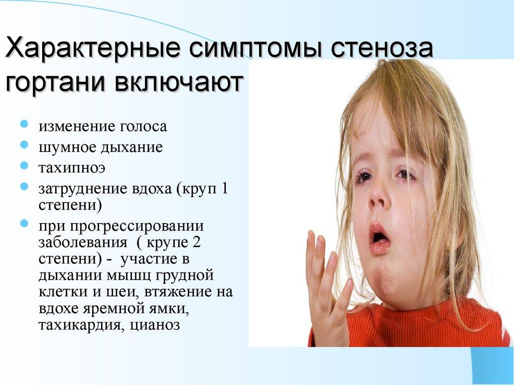 Ложный круп у детей: как помочь малышу