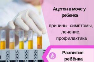 Ацетон в моче у ребенка: причины, риски, заболевания
