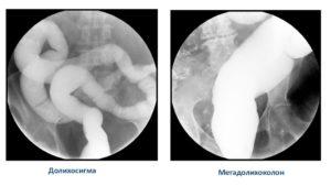 Долихосигма кишечника у ребенка что это