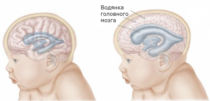 Гидроцефалия (водянка головного мозга) – что это такое, причины, признаки и симптомы гидроцефалии у взрослого и у ребёнка, диагностика и лечение