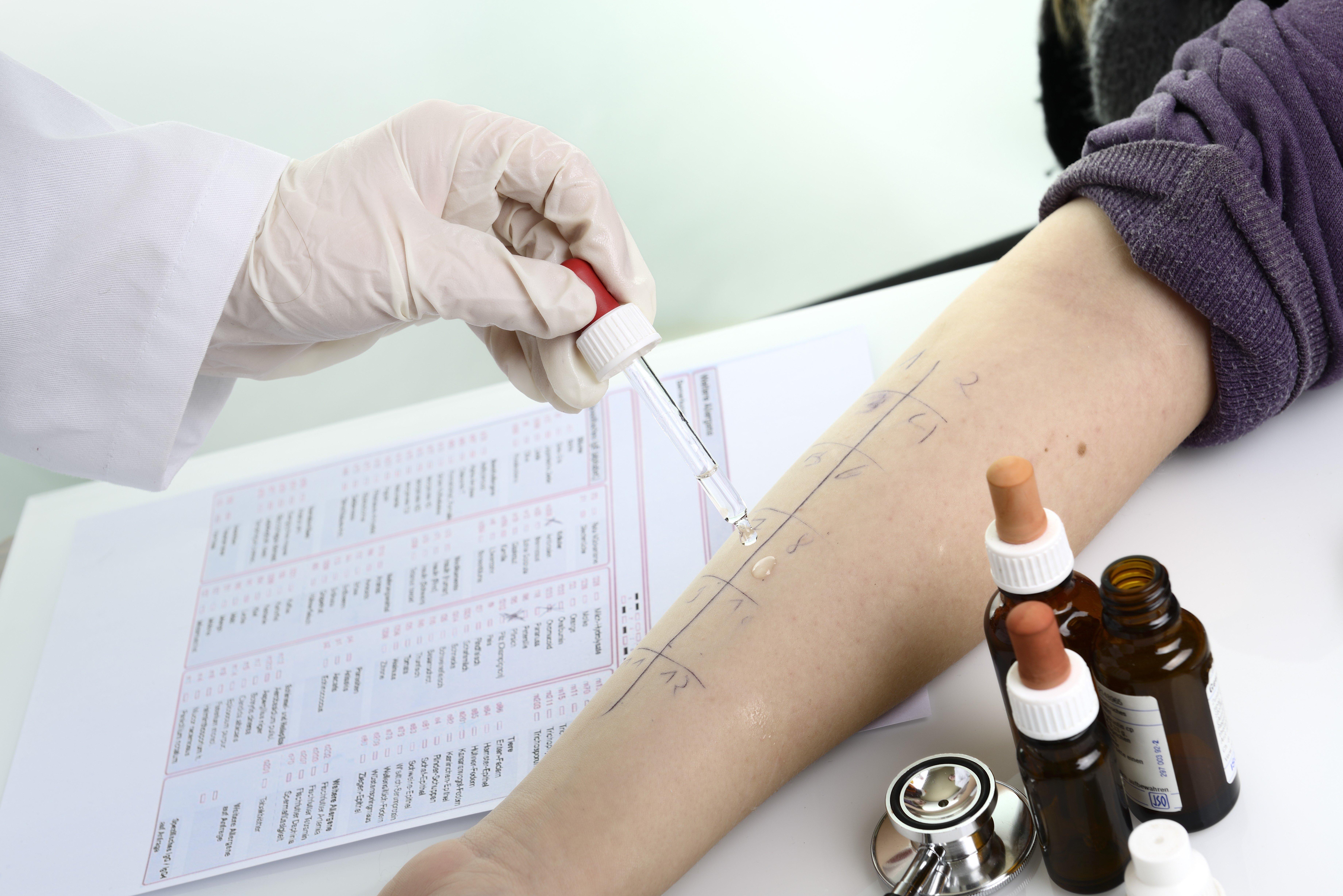 Аллергопробы для ребенка: анализы крови, провокационный тест и кожные пробы для выявления аллергена