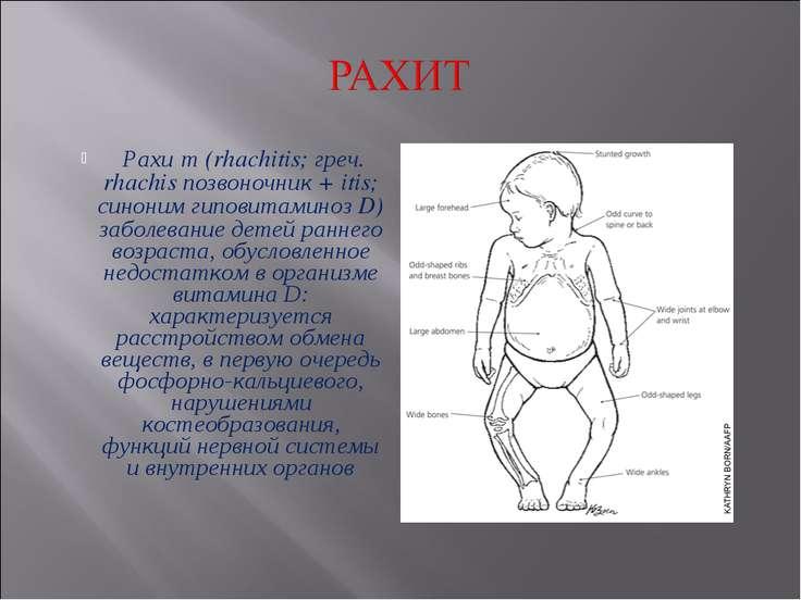 Рахит у детей: признаки рахита у грудничков, лечение и профилактика