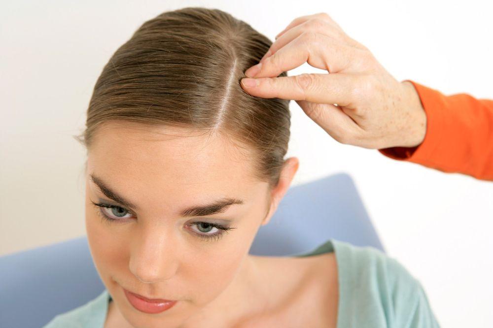 Шелушение кожи головы и сухость - причины и лечение с помощью шампуней и народных средств