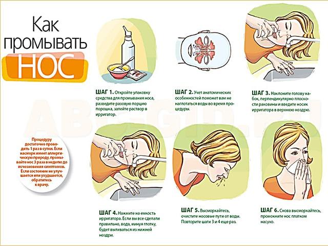 Двусторонний гайморит у ребенка, лечение острого двухстороннего гайморита у детей от 2 до 4 лет
