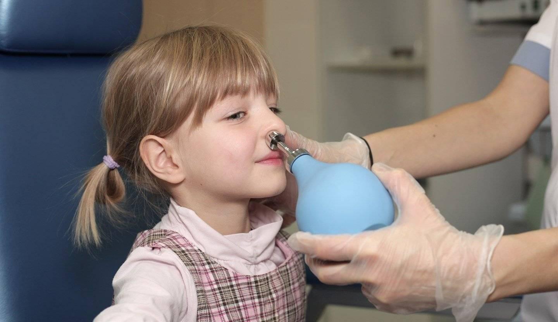 Лечение аденоидов у детей без операции: 5 основных методов