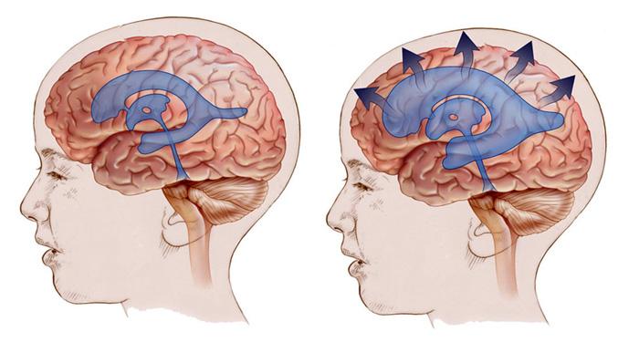 Гидроцефалия у детей до года: признаки, причины и лечение
