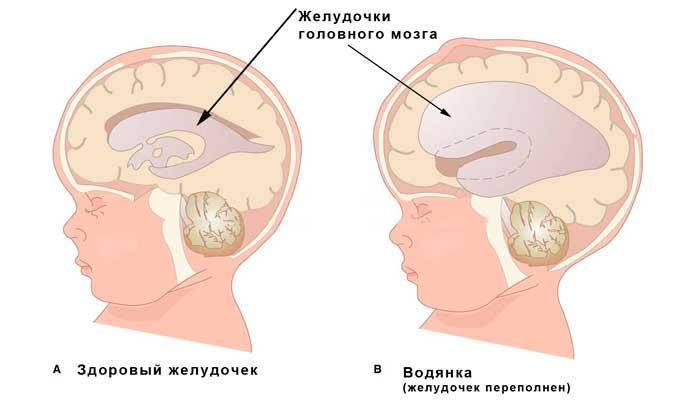 Опасность псевдокисты головного мозга у новорожденного