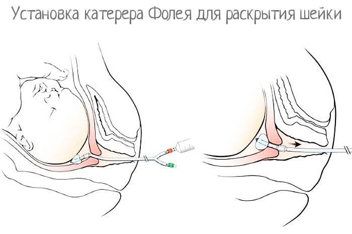 Катетер фолея для раскрытия шейки матки: установка, уход