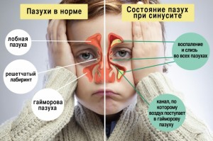 Гайморит у детей: симптомы, лечение и осложнения заболевания