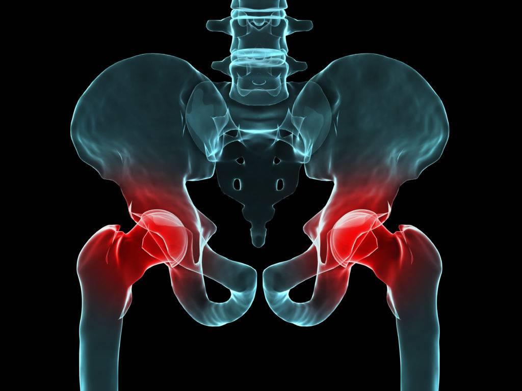 Артрит тазобедренного сустава у детей — виды, причины, симптомы и лечение