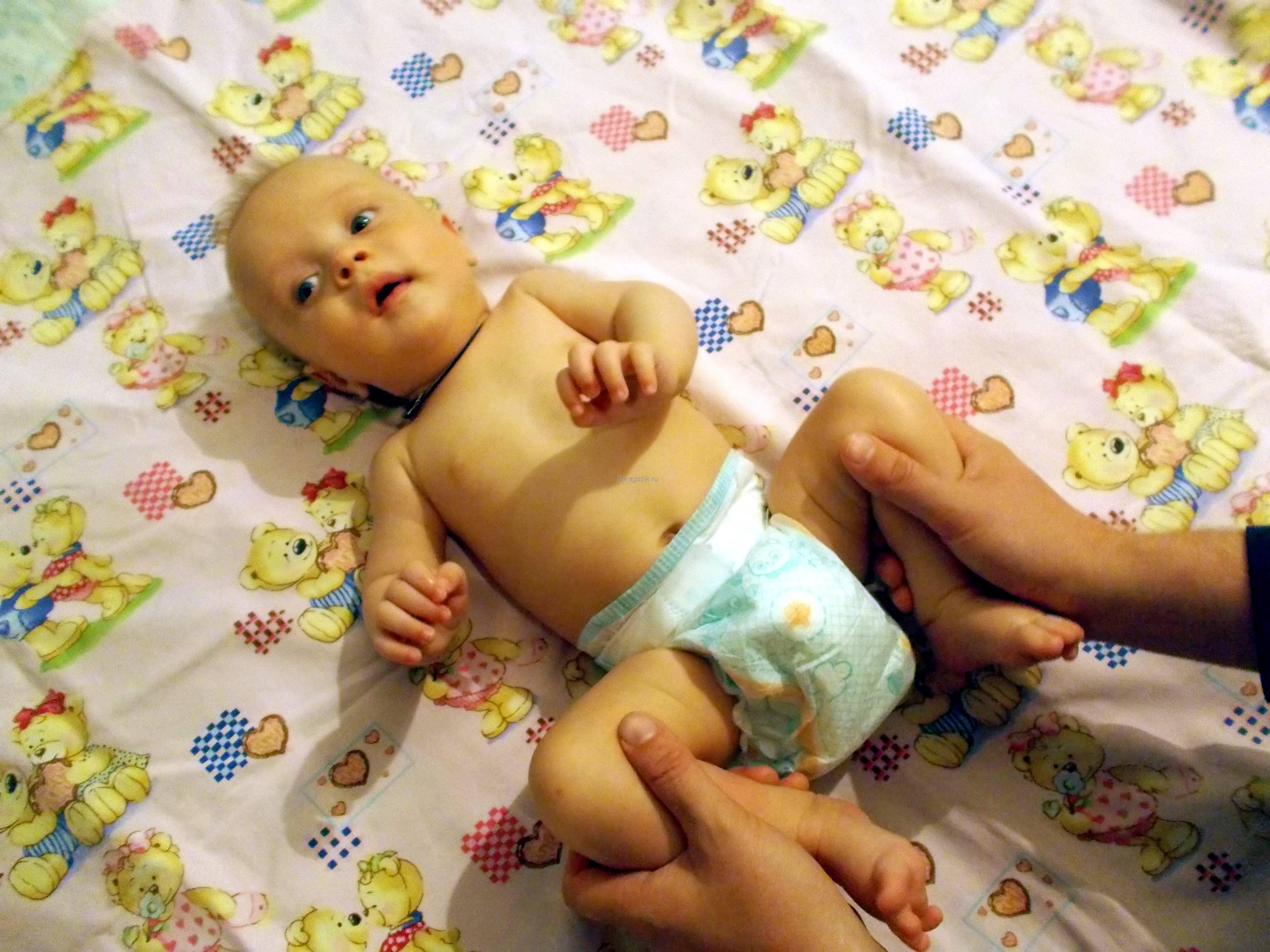 Мышечная гипотония у детей: признаки, диагностика, методы лечения