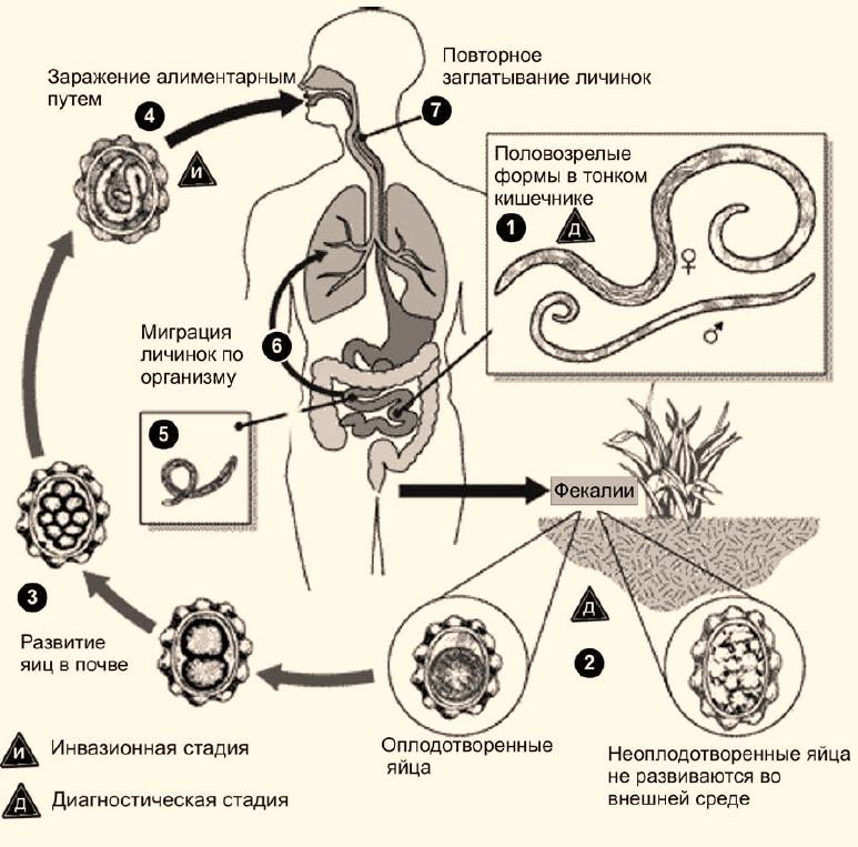 Человеческие аскариды: симптомы и лечение