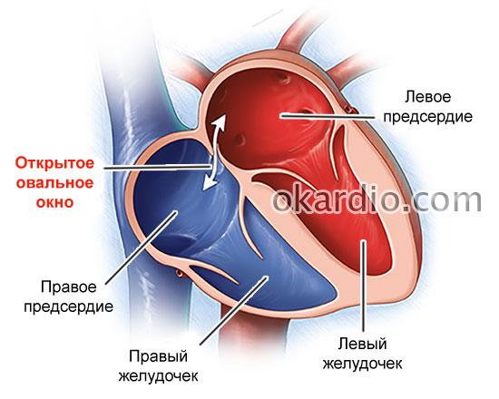 Открытое овальное окно в сердце у ребенка: симптомы, причины и лечение