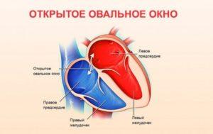 Овальное окно в сердце у детей: характеристика, причины патологии, симптоматика и лечение — заболевания сердца