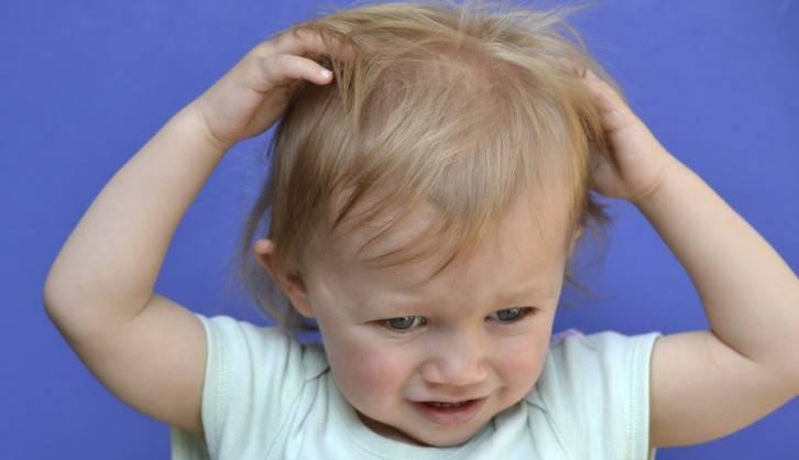 Что делать, если шелушится кожа у ребенка?