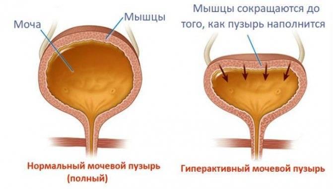 Что такое нейрогенный мочевой пузырь у ребенка, почему он возникает и как лечится?