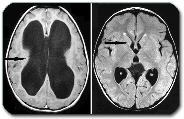 Гидроцефалия. причины, симптомы, признаки, диагностика и лечение патологии :: polismed.com