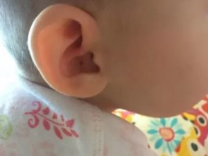 Ребенок чешется во сне. почему ребенок чешет уши: на что обратить внимание