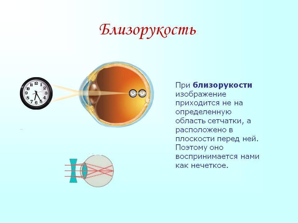 Дальнозоркость у детей - что это, причины и лечение гиперметропии