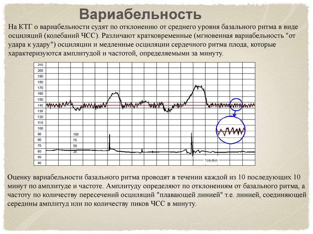 Что такое фетометрия плода — таблица показателей нормы по неделям беременности
