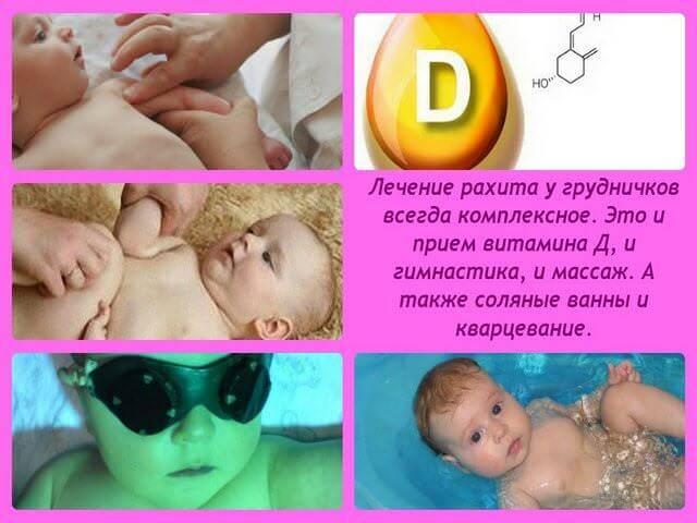 Рахит у грудничков: причины, симптомы, лечение