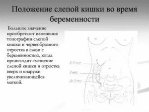 Что можно принимать беременным при боли в кишечнике