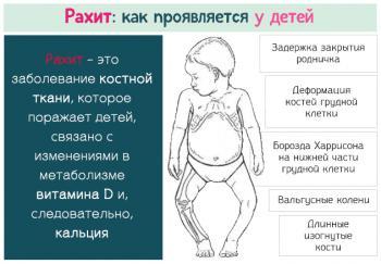 Профилактика рахита у детей: рекомендации для детей раннего возраста, особенности для недоношенных детей