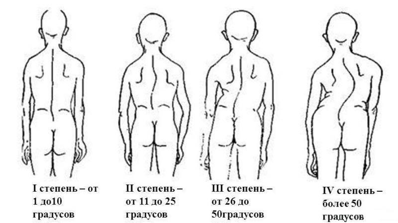 Сколиоз у детей: 12 причин появления, 5 ведущих симптомов, 5 методов лечения