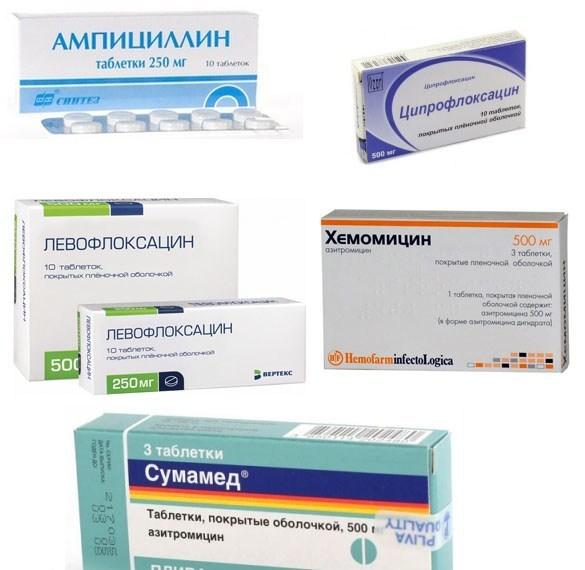 6 причин для лечения бронхита антибиотиками и обзор препаратов, которые часто назначают педиатры