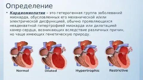 Кардиомиопатия. причины, симптомы, признаки, диагностика и лечение патологи