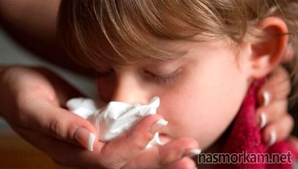 У ребенка внезапно пошла кровь из носа   медик03