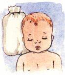 Кривошея. причины, признаки, методы лечения. кривошея у новорожденных, спастическая кривошея.