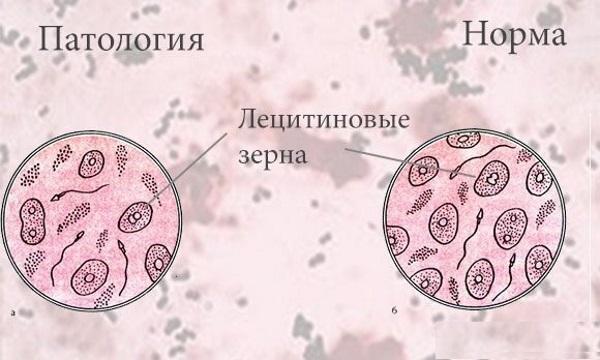 О чем расскажут лецитиновые зерна и другие показатели в спермограмме?