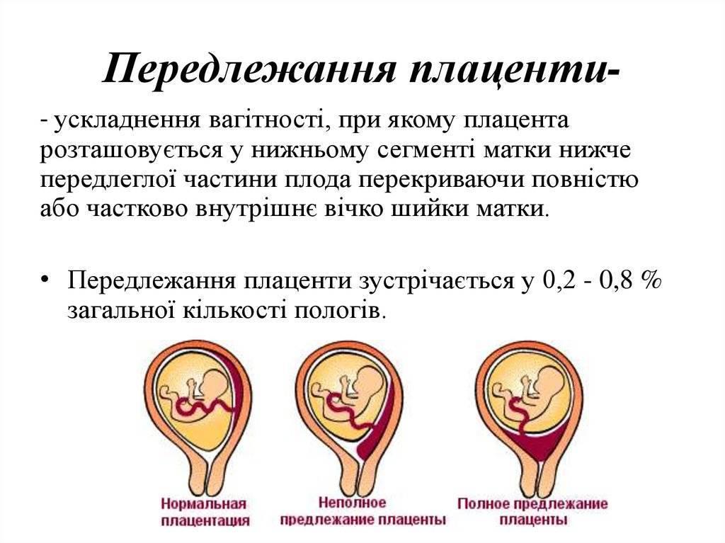 Краевое предлежание плаценты: возможно ли родить самостоятельно?
