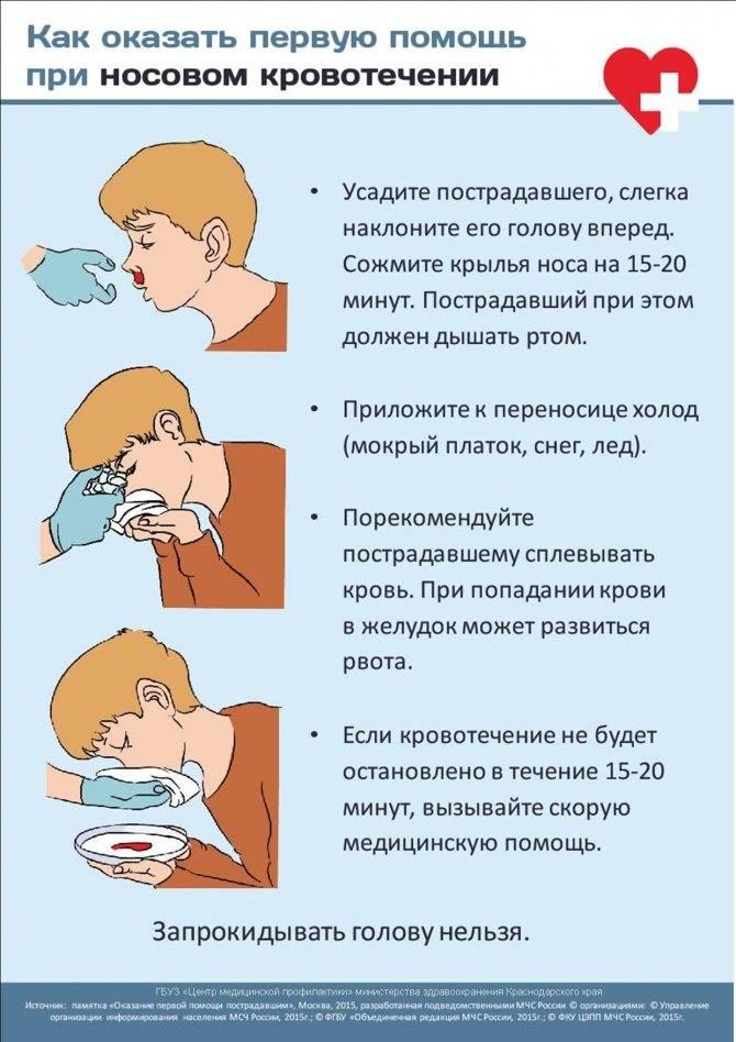 Носовые кровотечения причины у подростков