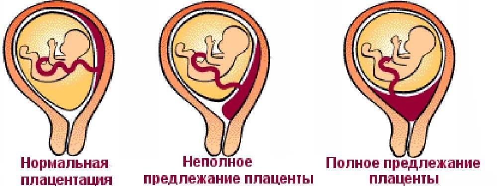 Предлежание плаценты (36 фото): положение хориона при беременности, что такое неполное расположение и миграция