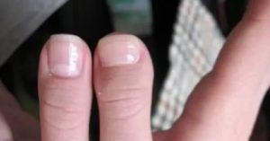 Брахидактилия большого пальца - кабинет ортопеда